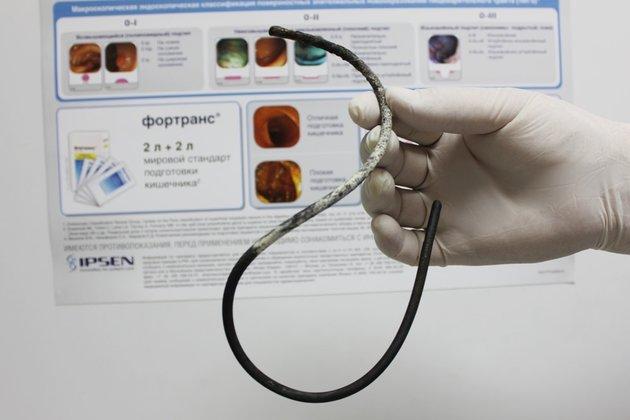 ВБурятии мед. сотрудники на17 лет забыли вжелудке пациентки зонд