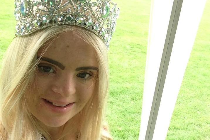 Модель с синдромом Дауна выиграла конкурс красоты